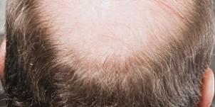 A8A3N9 Mature businessman with bald head