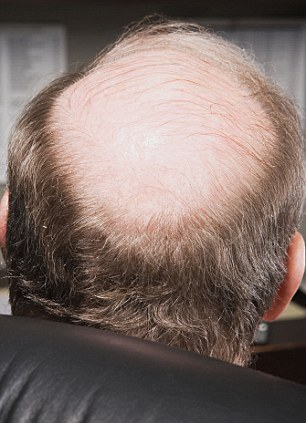 A8A3N9 Mature businessman with bald head